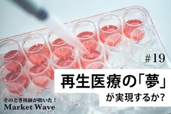 東証マザーズで「バイオ祭り」復活の可能性 再生医療の「夢」が実現するか?