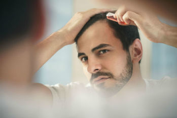 薄毛,AGA,治療費,プロペシア,ミノキシジル,植毛