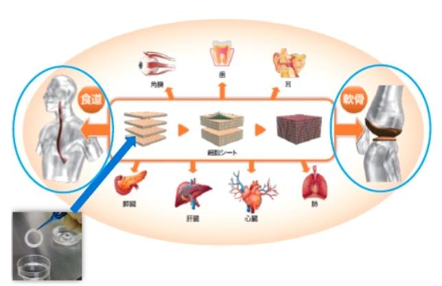 細胞シート再生医療事業