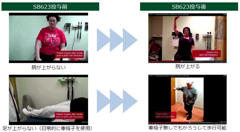 SB623」の効能