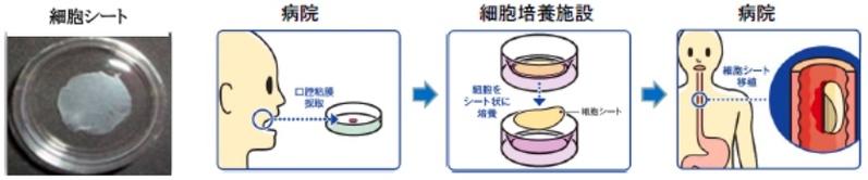 食道再生上皮シート(CLS2702C/D)